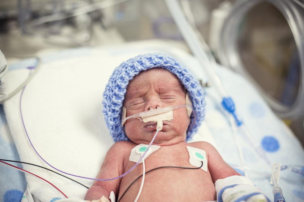 A premature baby in the Neonatal Intensive Care Unit (NICU).
